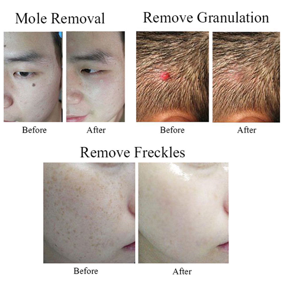 Details about Portable LCD 9 Laser Age Spot Pen Mole Warts Freckle Tattoo  Scar Removal Machine