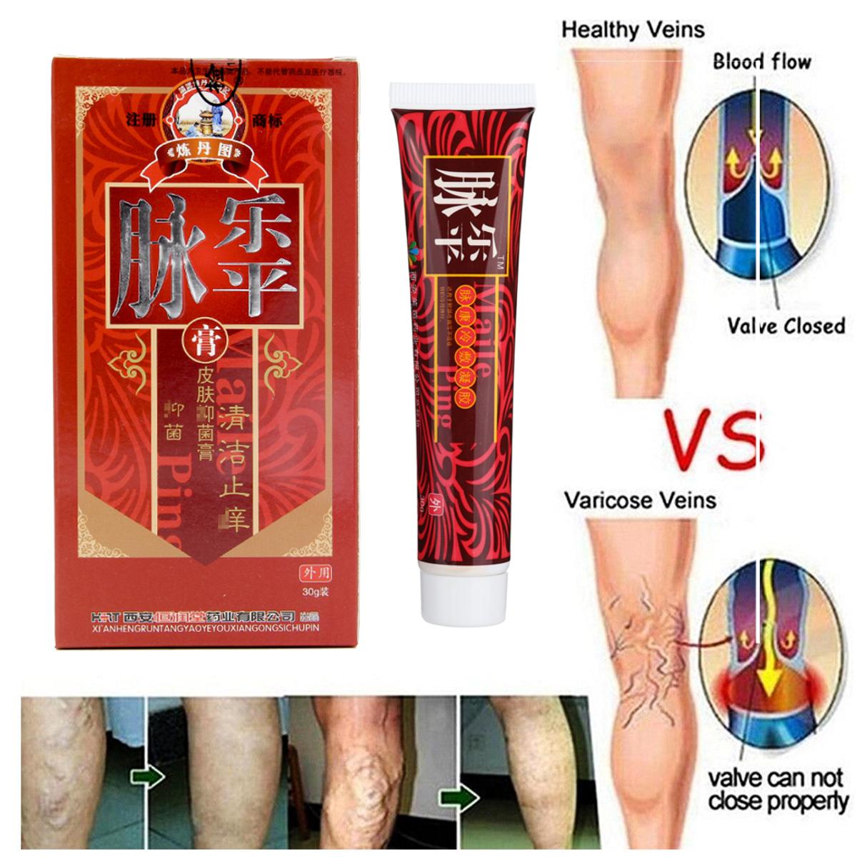 Varicose Veins Cream Chinese Medicine Ointment Legs ...