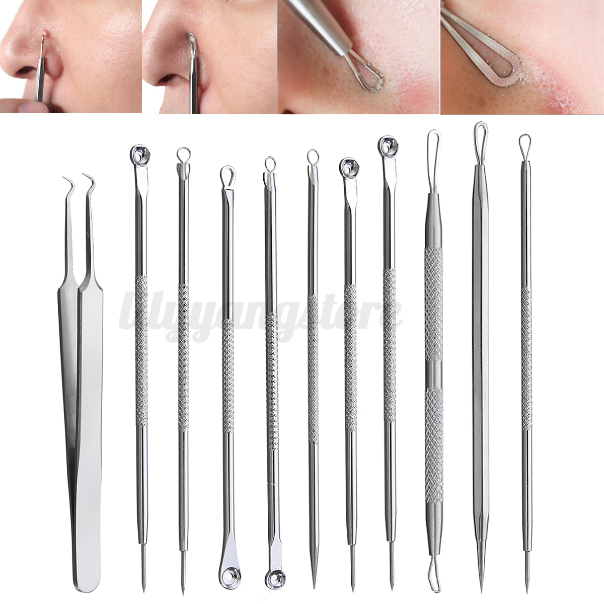 Pro Blackhead Pimple Blemish Face Acne Comedone Extractor ...
